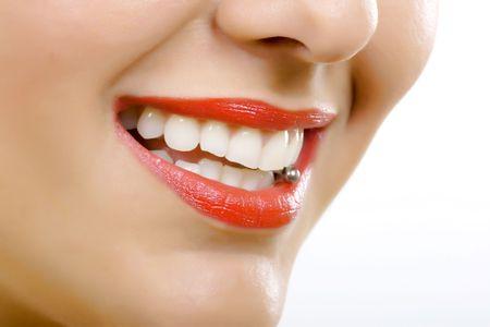 Zęby po wybieleniu